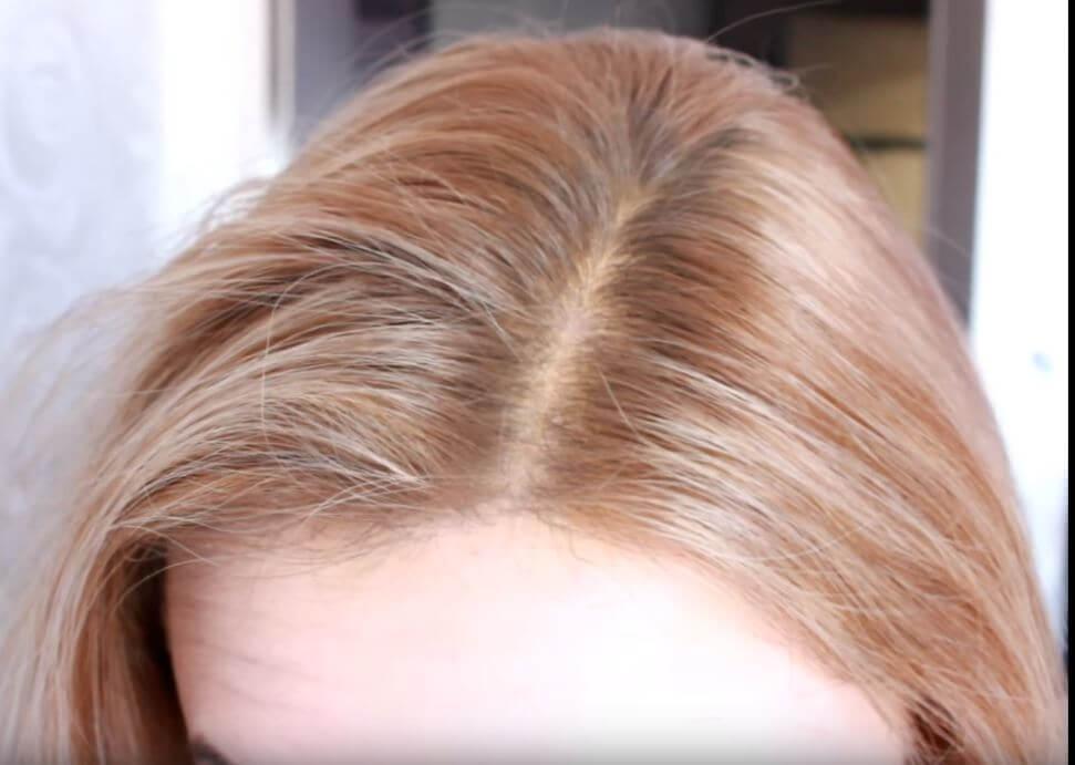 Жирный корень волос